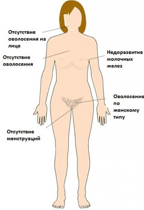 Синдром Свайера: особенности заболевания и возможности лечения