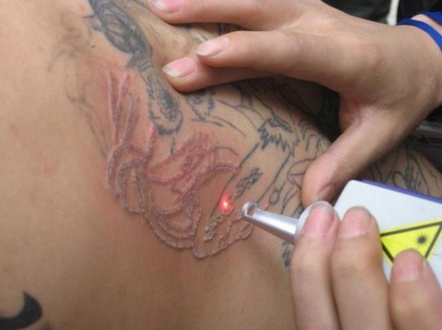 Лазер для удаления татуировок своими руками 12