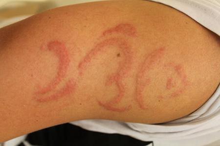 может ли быть аллергия на стиральный порошок