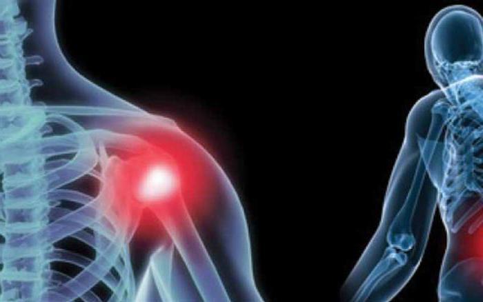 адгезивный капсулит плечевого сустава