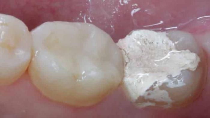 Мышьяк в постоянных зубах
