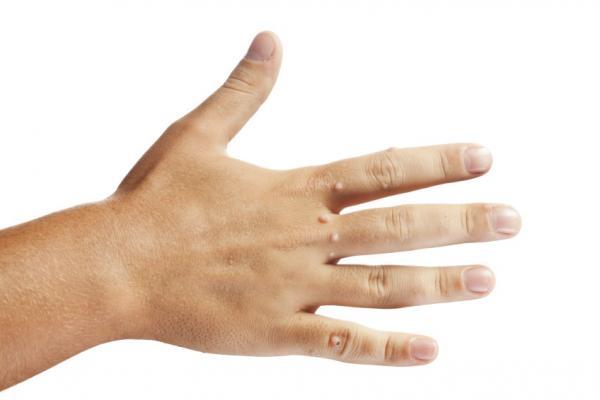 Чем вывести бородавку на руке: народные средства и лекарственные препараты. Бородавки на руках: причины и лечение