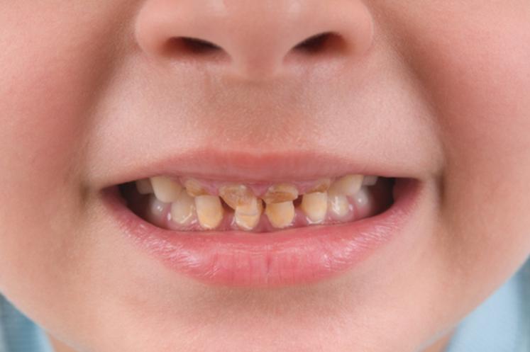 boy tooth problems