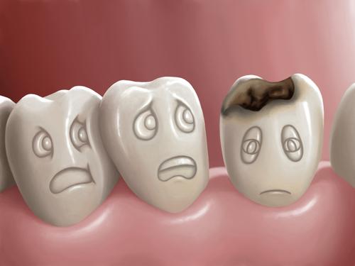 tooth disease