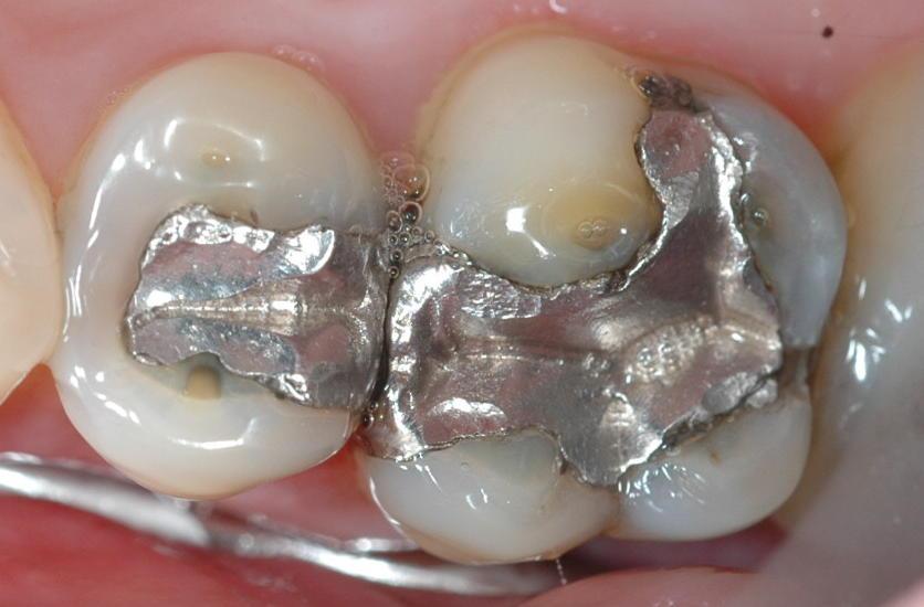 зуб с мышьяком