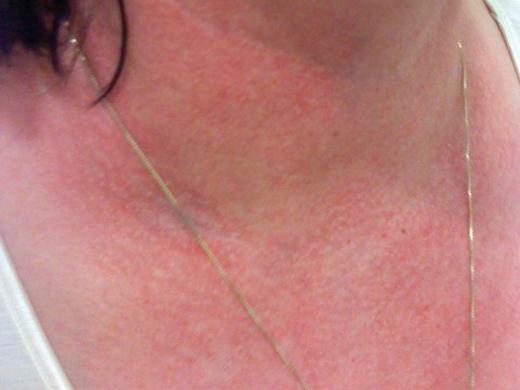 аллергия от алкоголя на шее