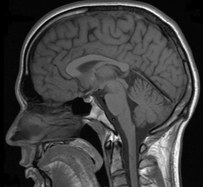 расширение субарахноидальных пространств головного мозга у взрослых