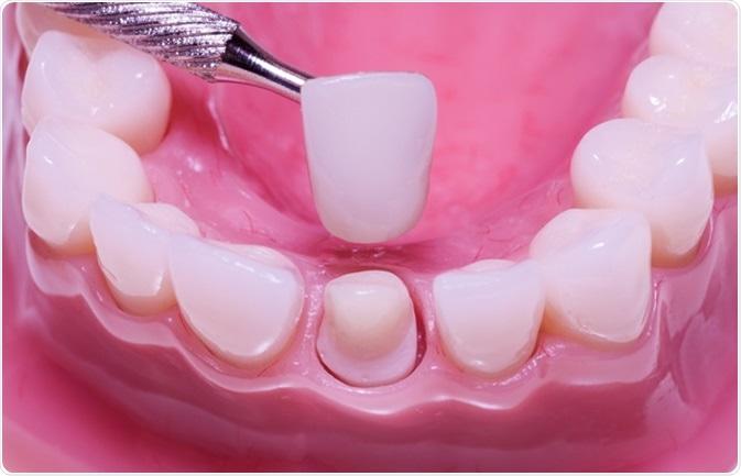 Реставрация передних зубов пломбировочным материалом