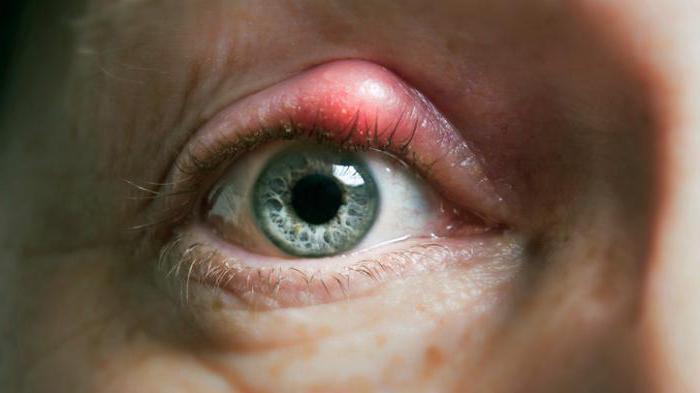 Заразен ли ячмень на глазу у ребенка