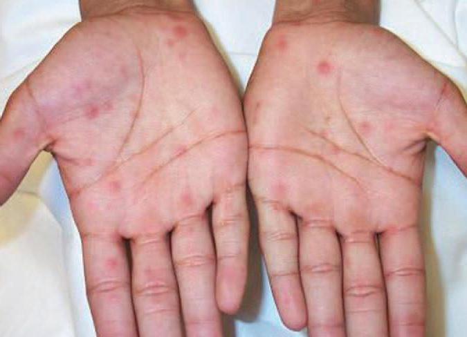 Сыпь на ладонях и ступнях у ребенка и взрослого причины аллергии