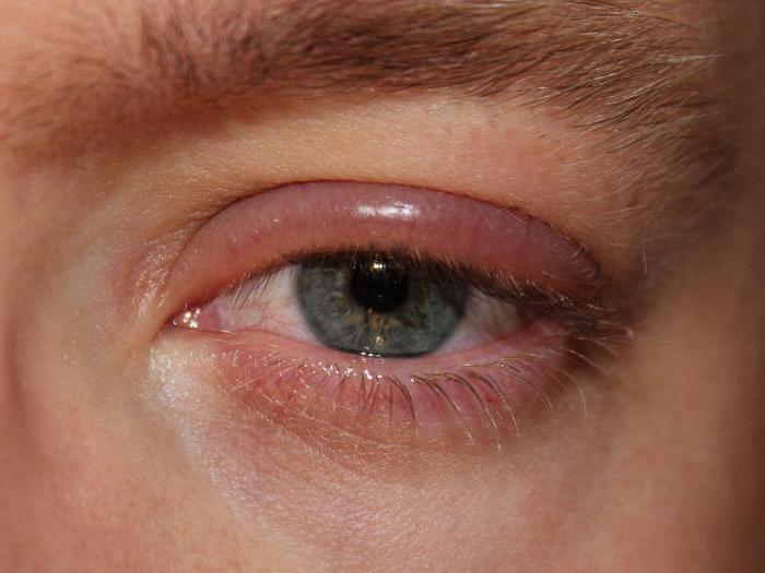 Клей для наращивания ресниц аллергия лечить