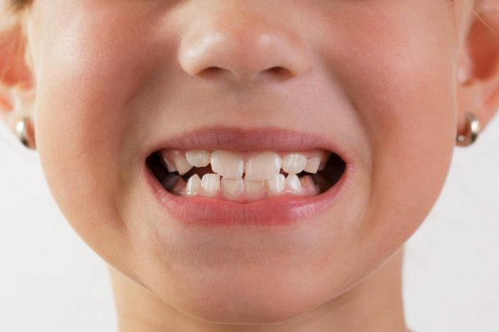 Выравнивание зубов у ребенка 6 лет 4