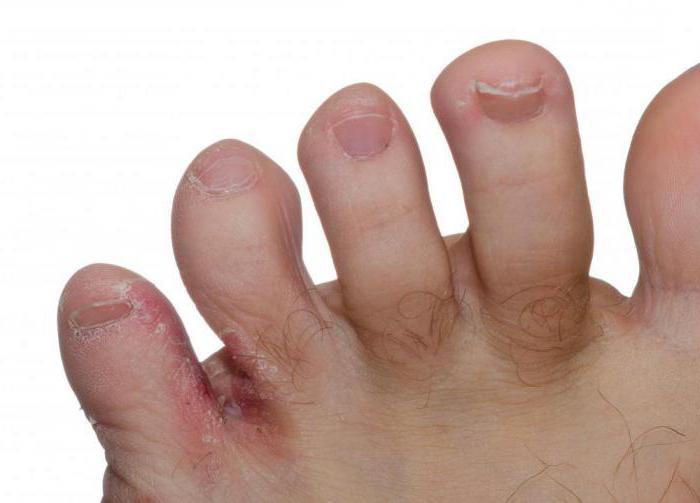 Чего боится грибок на ногтях