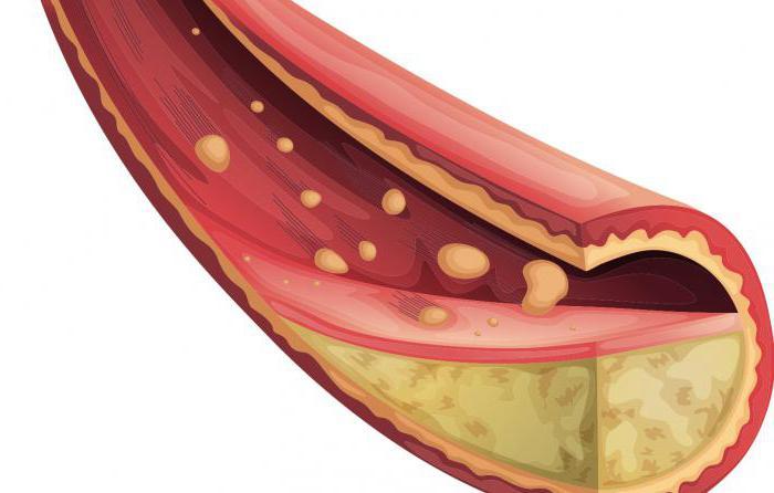 какие продукты снижают холестерин сахар