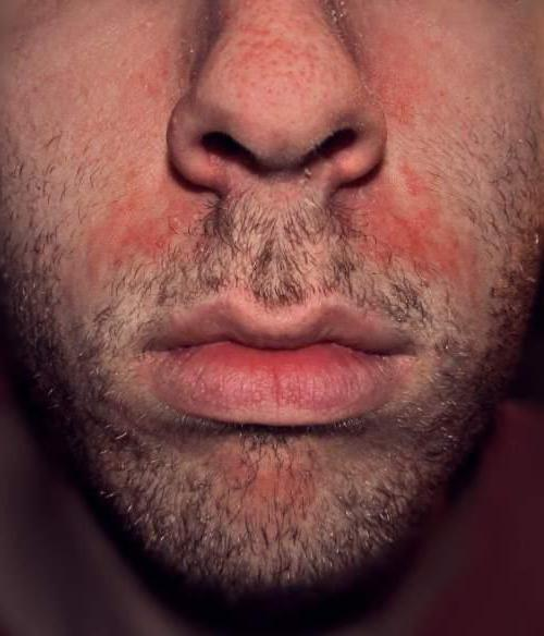 грибок в носу фото