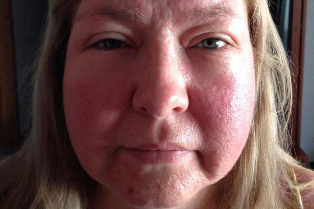 аллергия на солнце на лице симптомы