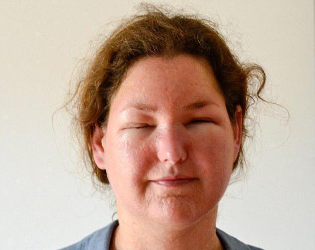 аллергия на солнце фото на лице