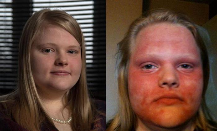 аллергия на весеннее солнце на лице