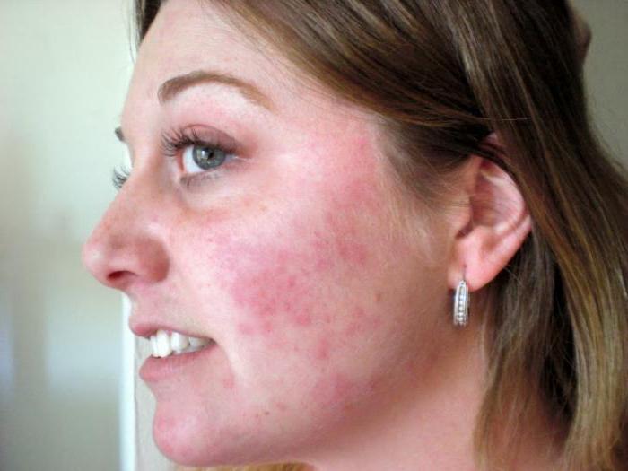 токсико аллергический дерматит мкб