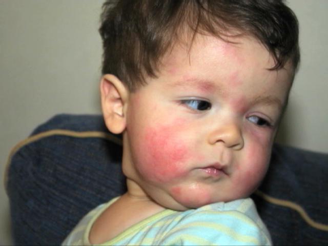 Аллергический дерматит в паху у детей 86