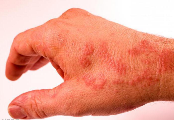 аллергия на попугаев симптомы