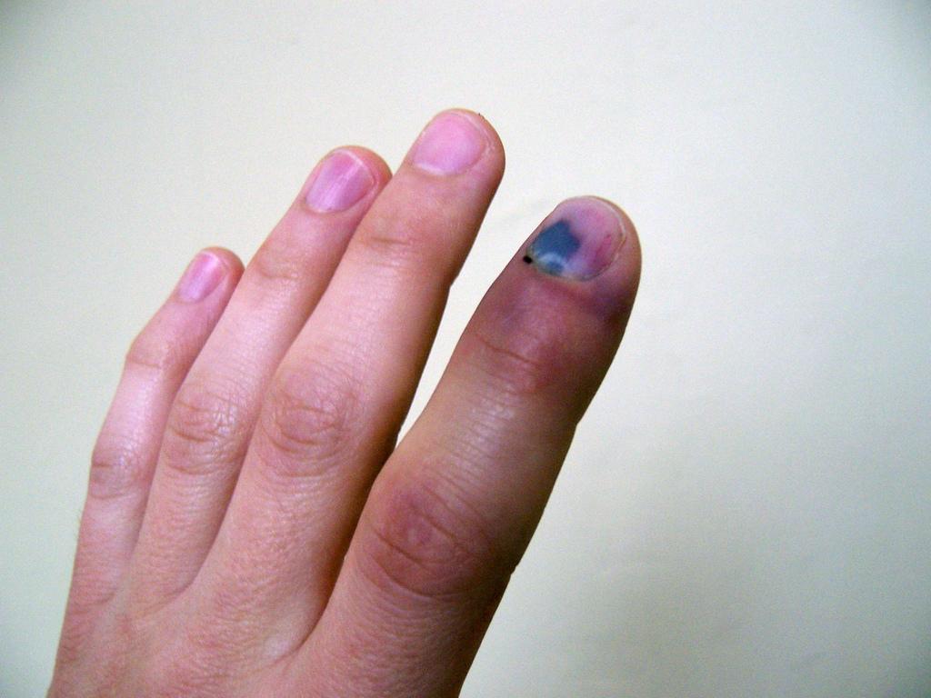 только картинка опухший палец советский