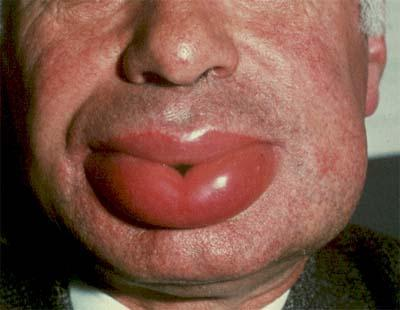 Болит челюсть при открытии рта лечение