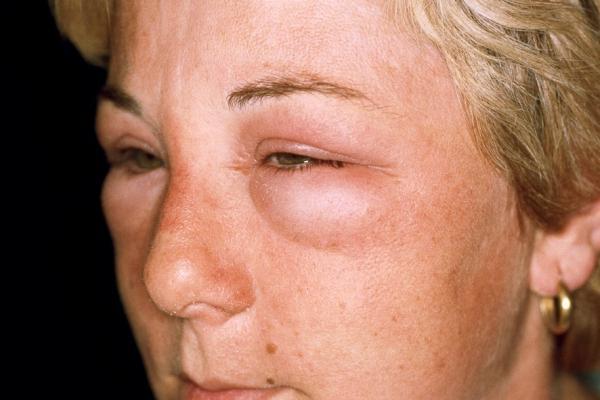 как выглядит аллергия на глазах фото