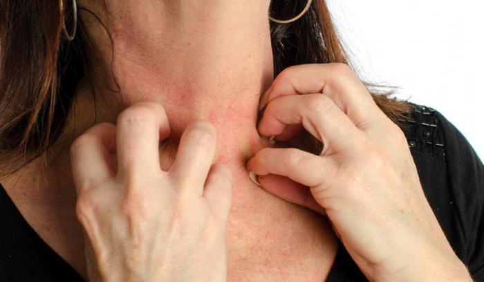 аллергия от пластыря на коже