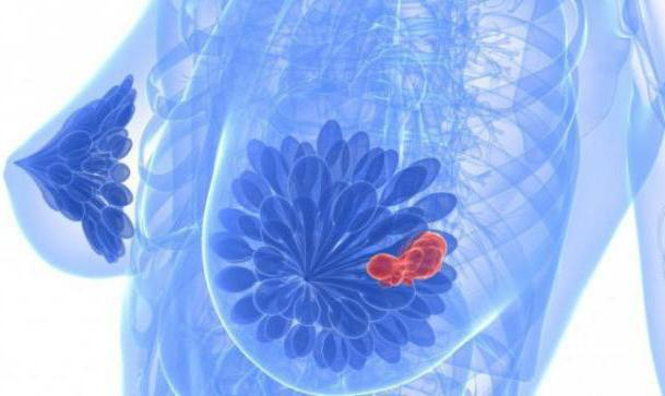 Смерть от рака матки 24