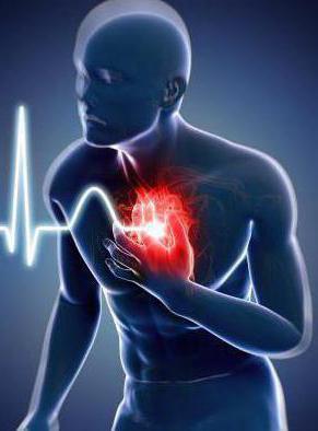 Как умирают при острой сердечной недостаточности