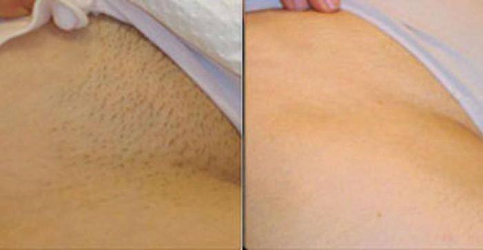 Brazilian wax before and after photos women