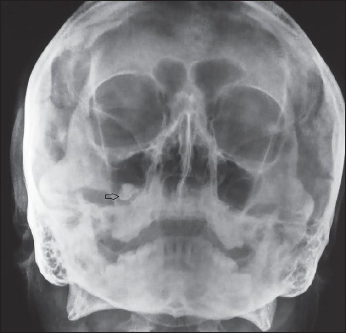 Фото рентгена носовых пазух