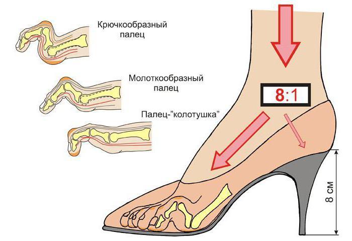 молоткообразные пальцы на ногах