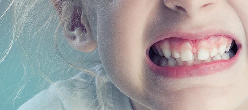 Отломанный зуб трактуется совсем неоднозначно, зубы ломаются к плохому.