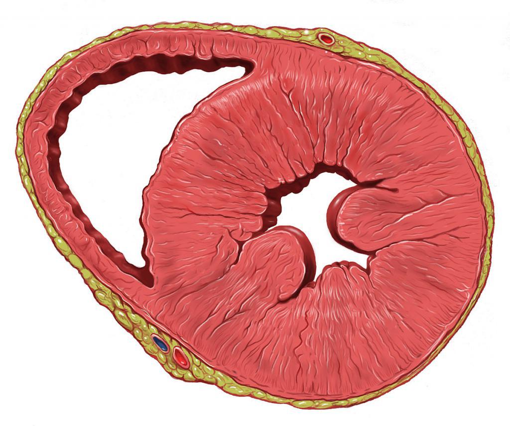 Гипертрофия левого желудочка сердца: симптомы и лечение