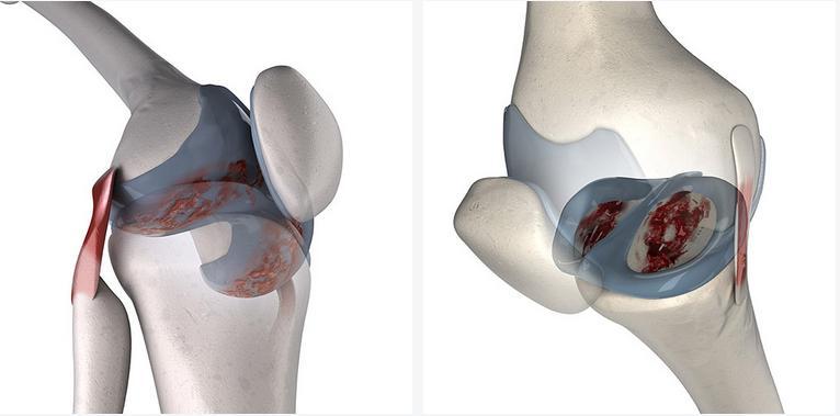 Как восстановить хрящевую ткань в суставах? Препараты и питание для восстановления хрящевой ткани суставов