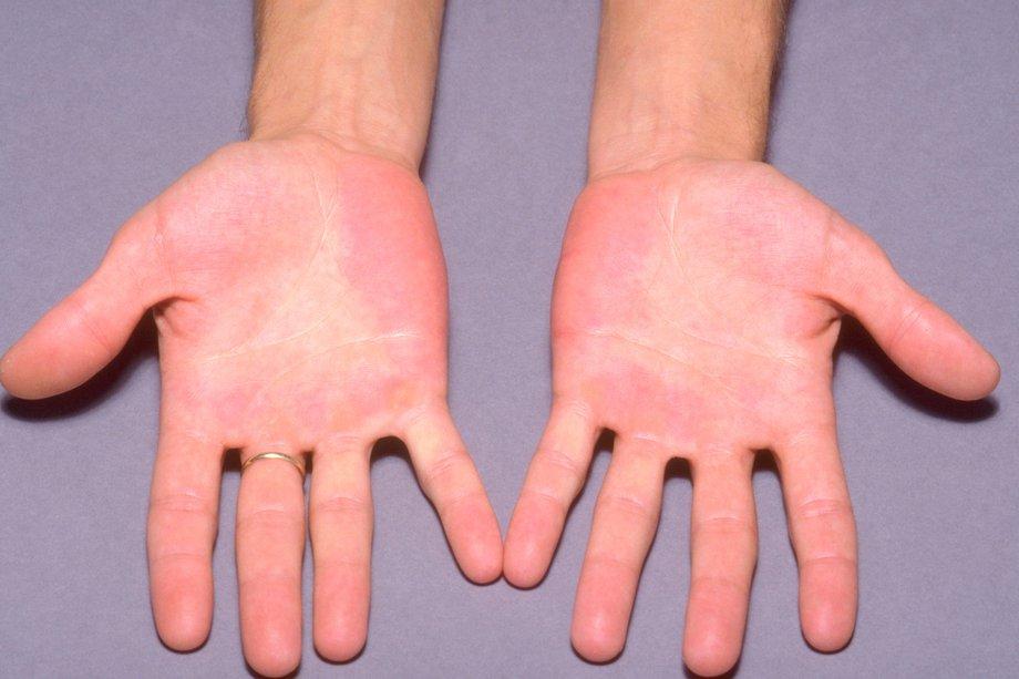 Обе руки красные