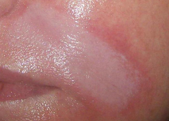 гиалуроновая кислота в губы отзывы фото