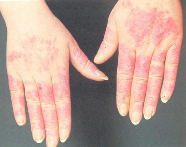 аллергия на холод на ногах