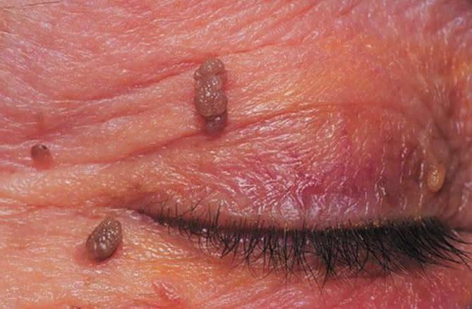 лечение папилломавирусной инфекции у мужчин