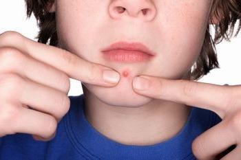Квасцы при лечении вросшего ногтя