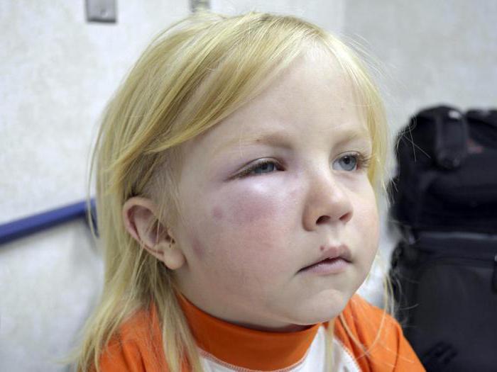аллергия у ребенка психологические причины