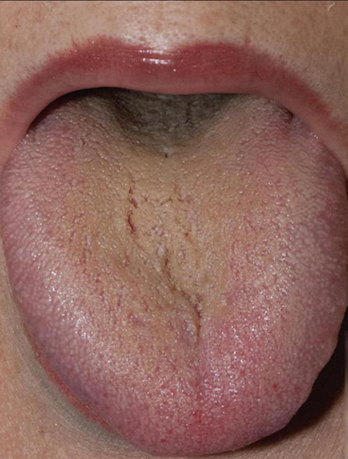 Налет у корня языка за сексуальной активности