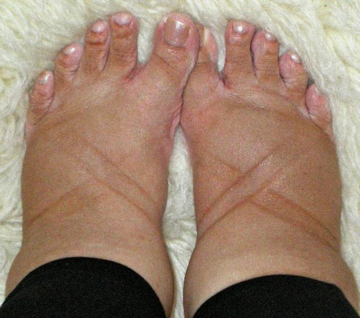 Причина жара в ступнях ног