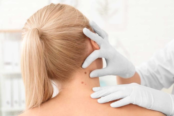 врач осматривает рак кожи на шее