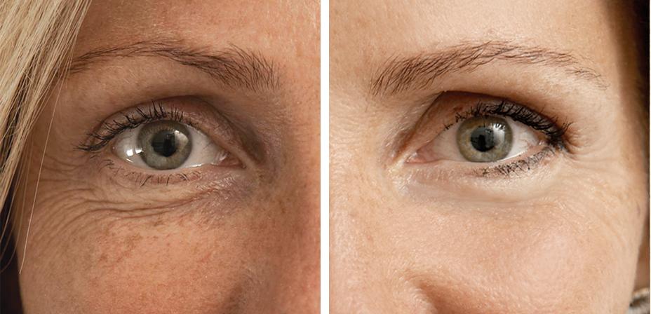 Мезотерапия кожи лица: показания к процедуре, особенности проведения, фото до и после