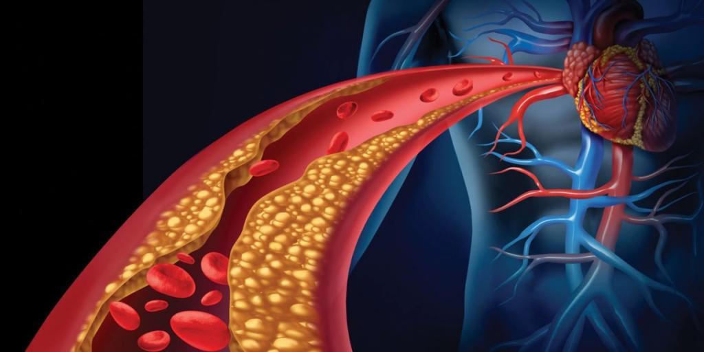 Как снизить холестерин в крови у женщин: народные средства и лекарственные препараты. Чистка организма от шлаков и токсинов