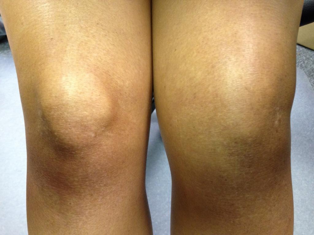 Отек коленей: причины и методы лечения