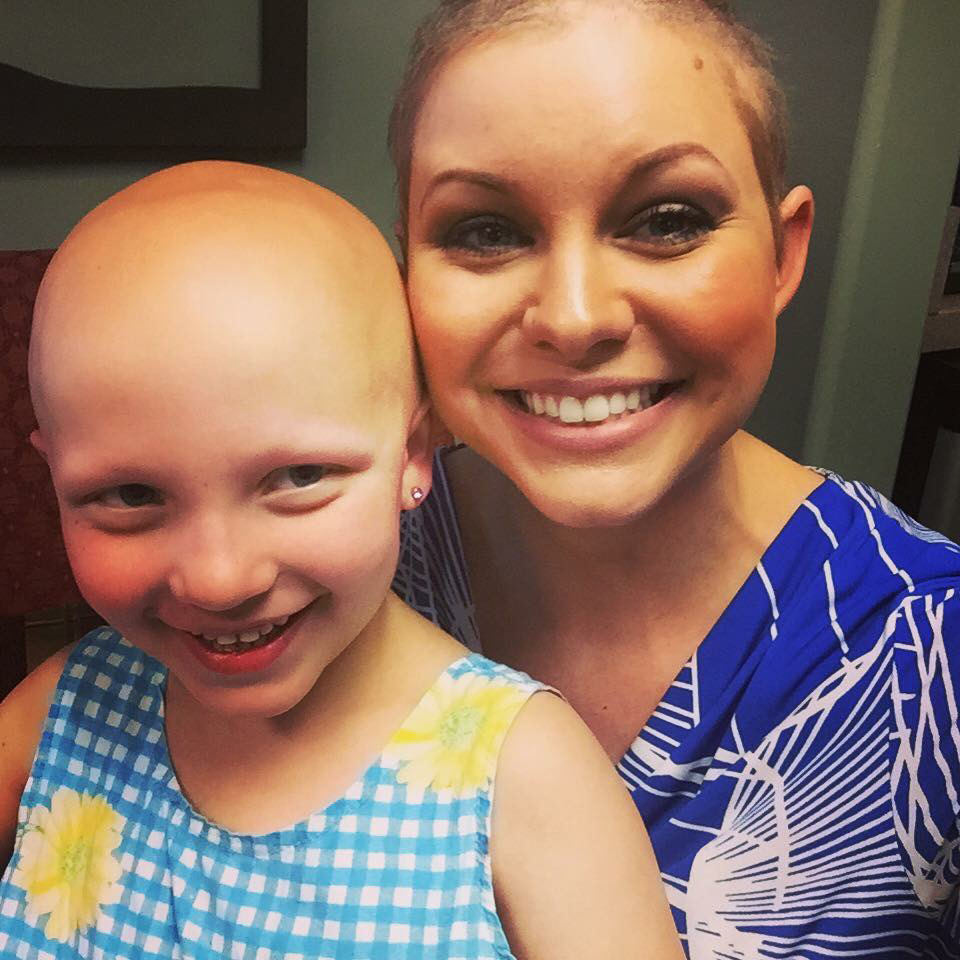 Alopecia areata in children